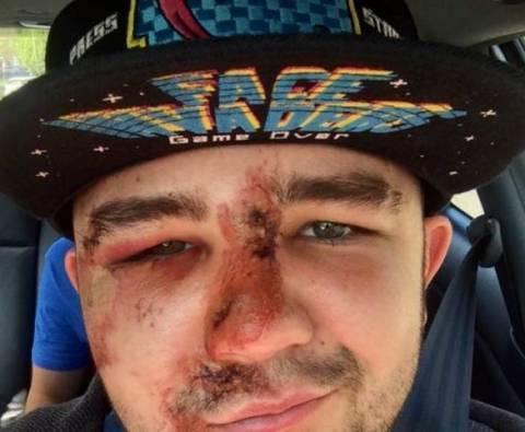 Δείτε τι έπαθε ποδηλάτης από λακκούβα. Προσοχή σκληρές εικόνες!