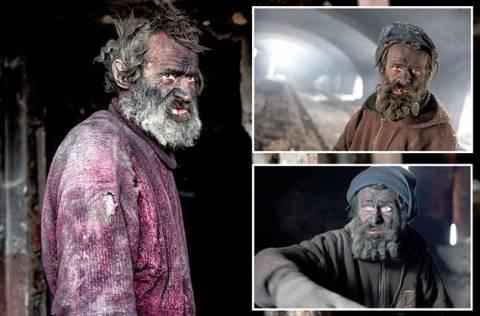 Η τραγική ιστορία του πιο βρώμικου ανθρώπου στην Ευρώπη (pics)