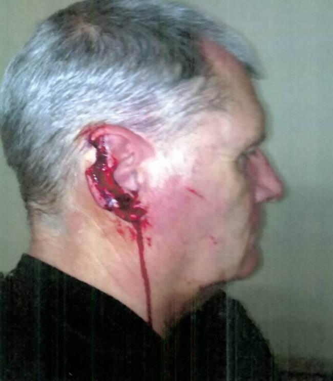 Στη φυλακή γιατί δάγκωσε αυτί αστυνομικού! (σκληρές εικόνες)