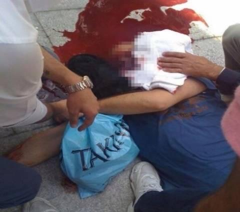 ΦΡΙΚΗ: Πυροβόλησαν διαδηλωτή στο κεφάλι–Η στιγμή της επίθεσης (vids)