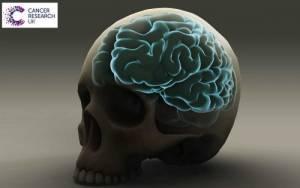 Όγκος στο κεφάλι: Δείτε ποια είναι τα ένοχα συμπτώματα