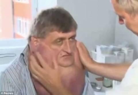 Σλοβακία: Ζούσε με όγκο έξι κιλών στο πρόσωπό του! (video+photos)