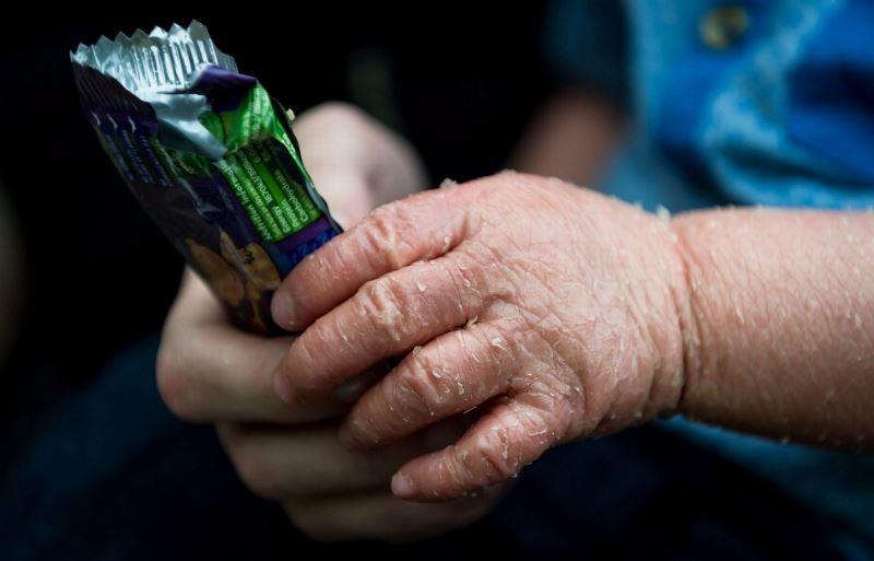 Βρετανία: Σπάνια πάθηση μετατρέπει το δέρμα του σε… (photos)