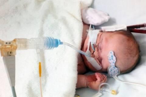Τραγικό: Έσβησε το μωρό με το καρδιακό πρόβλημα (pics)