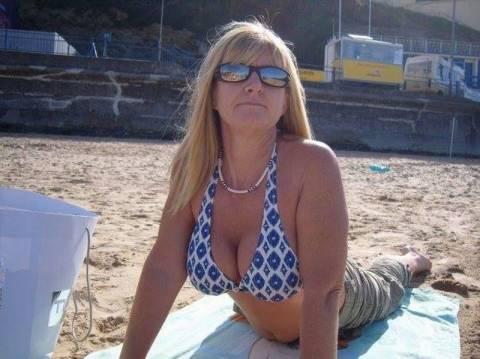 Βρετανία: Έσκασαν τα εμφυτεύματα σιλικόνης στο στήθος της! (photos)