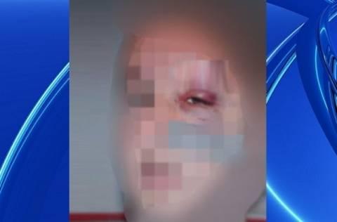 Ανήλικος ζήτησε πίσω τον αναπτήρα του και τον έστειλαν στο νοσοκομείο! (pic)