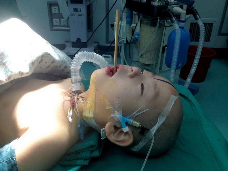Κίνα: Ξυλάκι φαγητού καρφώθηκε στον εγκέφαλο αγοριού! (σκληρές εικόνες)