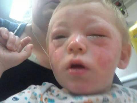 Μωρό ήρθε σε επαφή με κέτσαπ και δείτε πώς έγινε! (pics)