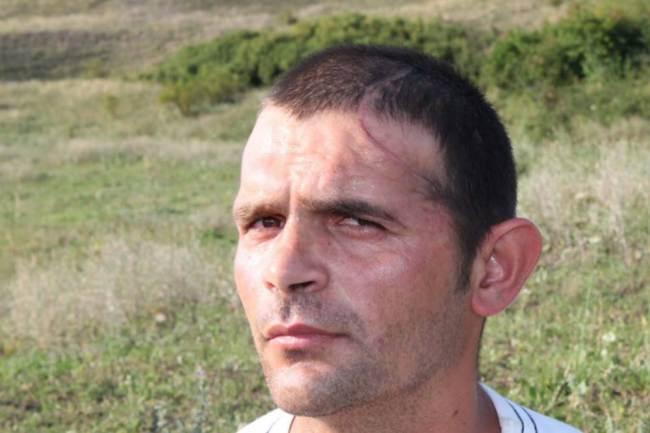 Ρουμανία: Επέμβαση… ζωής για τον οικοδόμο με το μισό κρανίο! (photo)