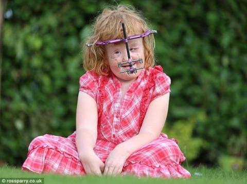 Το παιδί που μοιάζει με σπασμένη κούκλα! (σκληρές εικόνες)