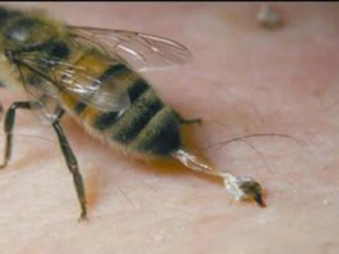 Τρίκαλα: Σε κρίσιμη κατάσταση 48χρονος από τσίμπημα σφήκας