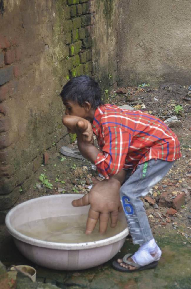 Ινδία: Το αγοράκι με τα μεγαλύτερα χέρια στον κόσμο! (video+photos)