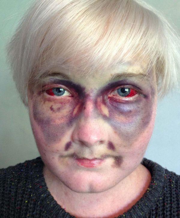 Βρετανία: Οι σοκαριστικές selfies – μήνυμα κατά του καρκίνου! (photos)