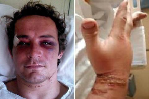Μήνυση στην ισπανική αστυνομία λόγω.... ξυλοδαρμού! (pic)