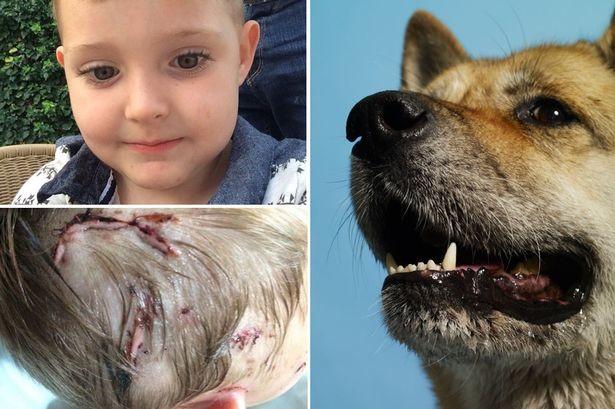 Βρετανία: Ακίτα έκοψε το αυτί 4χρονου! (photo)