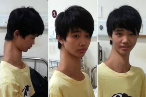 Κίνα: Το αγόρι με το μεγαλύτερο λαιμό στον κόσμο! (photos)