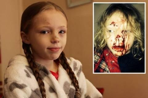 Τα απίστευτα σημάδια που άφησε ασυνείδητος οδηγός σε 9χρονη! (σκληρές εικόνες)