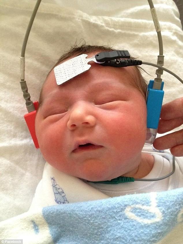 Η απίστευτη στιγμή που ένα κωφάλαλο μωρό ακούει για πρώτη φορά! (pics+video)