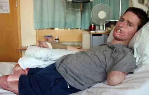Βρετανία: Έχασε τα άκρα του από λοίμωξη που «τρώει» τη σάρκα (pics)