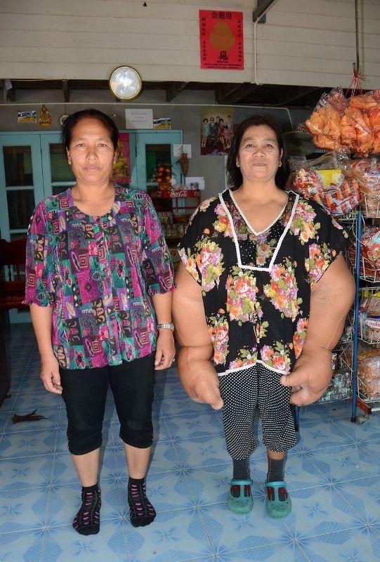 Ταϋλάνδη: Η γυναίκα με τα μεγαλύτερα χέρια στον κόσμο (photos)