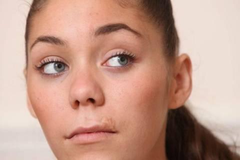 Η επίσκεψη στον οδοντίατρο τη σημάδεψε για μία ζωή (σκληρές εικόνες)