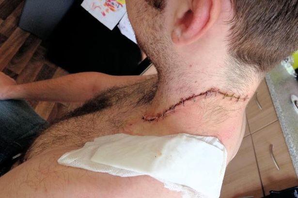 Φρικιαστικό ατύχημα: Καθρέφτης παραλίγο να τον αποκεφαλίσει! (pic)