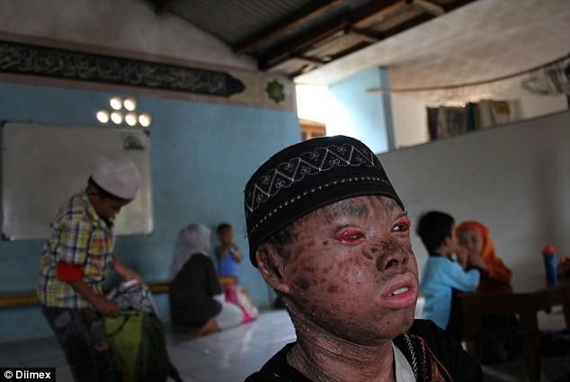 Το αγόρι με δέρμα... φιδιού - Αλλάζει κάθε 41 ημέρες (pics)