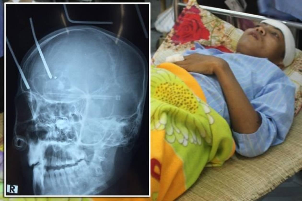 Βιετναμέζος κατέληξε στο νοσοκομείο με δύο καρφιά στο κρανίο του! (pics)