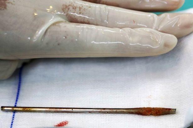 Δεν θα πιστέψετε τι έβαλε στα γεννητικά του όργανα (pics)