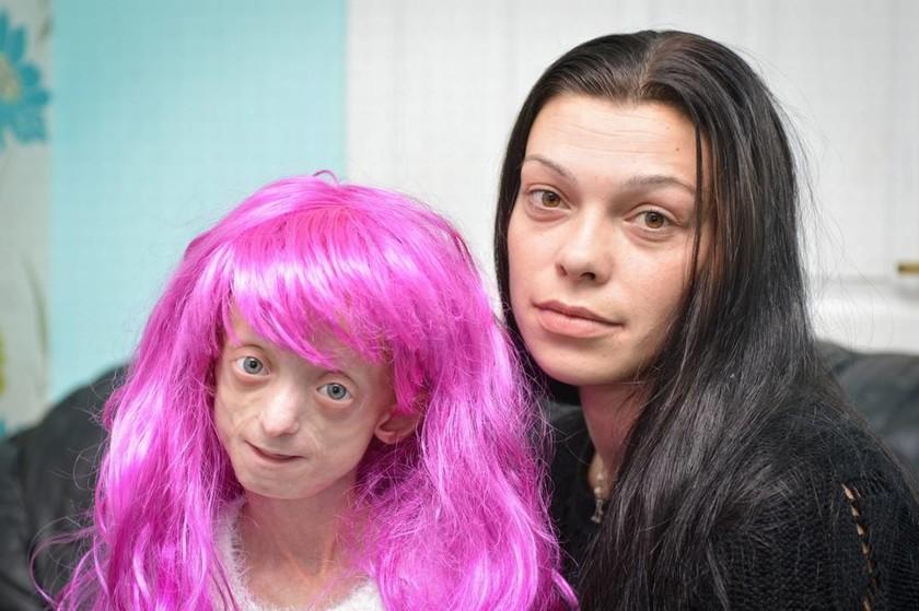 Δάσκαλοι ζήτησαν από άρρωστη μαθήτρια να βγάλει την περούκα της