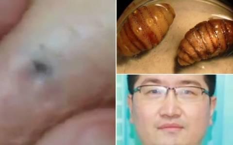 Κίνα: Είχε μέσα στο δέρμα του 20 ζωντανά σκουλήκια (video)