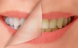 Δείτε για ποιους λόγους κιτρινίζουν τα δόντια σας