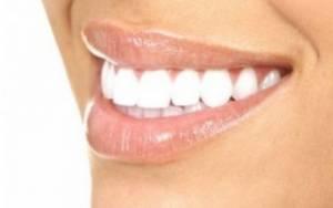 Λεύκανση δοντιών στο σπίτι: Δείτε πώς θα τα καταφέρετε!