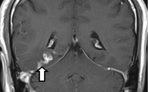 Παράσιτο ζούσε στον εγκέφαλο ανθρώπου τέσσερα χρόνια (pics)