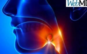 Πέτρες στις αμυγδαλές: Τι είναι, αίτια και συμπτώματα