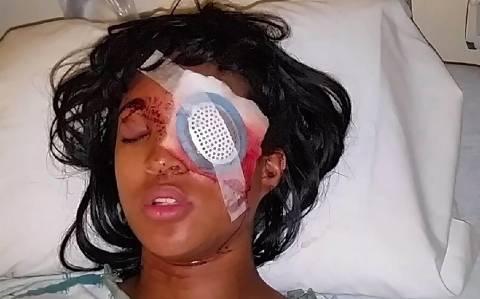 Φέργκιουσον: Έγκυος έχασε το μάτι της από πυρά αστυνομικού