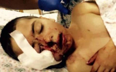 Ισραήλ: Αστυνομικός πυροβόλησε 5χρονο στο πρόσωπο