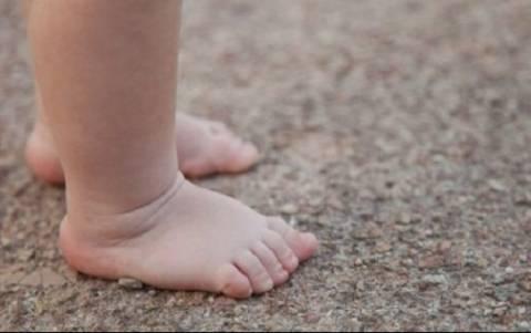 Γιατί τα πόδια του παιδιού μου είναι στραβά;