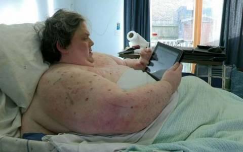 ΣΥΓΚΛΟΝΙΣΤΙΚΟ: Δείτε τις ακτινογραφίες ενός ανθρώπου 445 κιλών (pics)