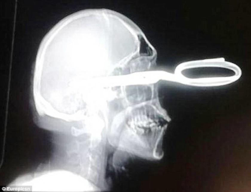 Βραζιλία: Πήγε στα επείγοντα με καρφωμένο ένα ψαλίδι στο κεφάλι του (pics)