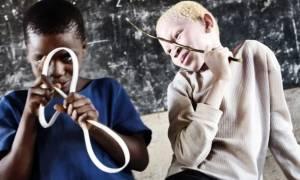 Τανζανία: Συλλήψεις «μάγων» για φόνους αλμπίνων