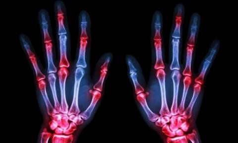 Δείτε τι συμβαίνει στα δάχτυλά σας κάθε φορά που κάνετε «κρακ»