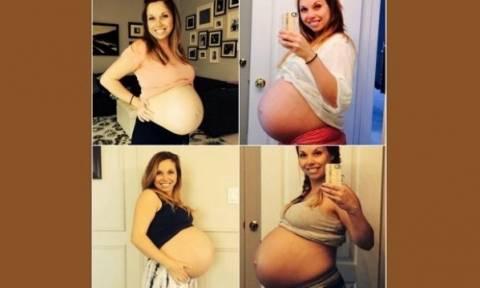 Το μήνυμα μίας γυναίκας μετά από 4 γέννες σε όλες τις μαμάδες του κόσμου!