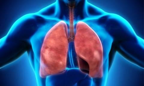 Παγκόσμια Ημέρα Φυματίωσης: Ποια είναι τα συμπτώματα της νόσου