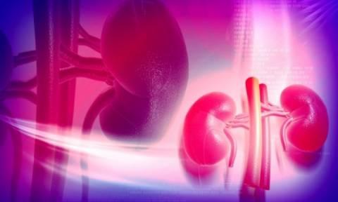 Τεστ αυτοαξιολόγησης για τα νεφρά σας