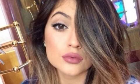 Συναγερμός! Η Kylie Jenner δεν έχει πια χείλη και σας έχουμε τα ντοκουμέντα