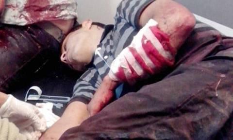 Αργεντινή: «Υποδέχτηκε» τους ληστές με σπαθί σαμουράι (σκληρές εικόνες)