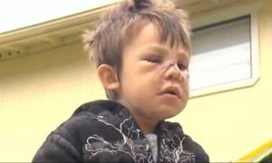 Άγρια επίθεση πιτ μπουλ σε τετράχρονο (video & pics)