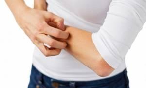 Έρπης ζωστήρα: Πώς θα απαλλαγείτε από τον πόνο και τη φαγούρα