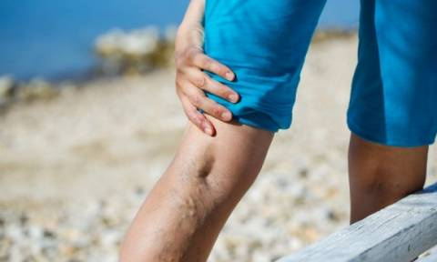 Κιρσοί: Οριστικό τέλος με συνδυαστική θεραπεία Laser & φλεβοτόμου